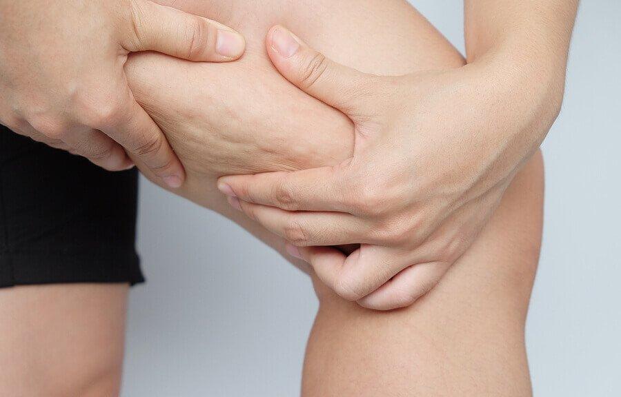 La cellulite, mieux la comprendre pour mieux la combattre 🥊