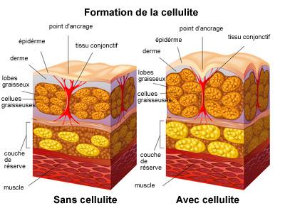 formation de la cellulite
